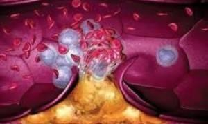 Рассасываются ли тромбы