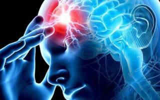 Ишемический инфаркт правого полушария головного мозга