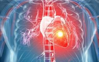Внок рекомендации по инфаркту миокарда
