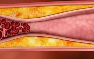 Как бороться с холестериновыми бляшками в сосудах