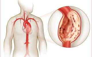 Кальциноз дуги аорты