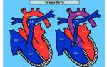 Врожденный порок сердца тетрада фалло прогноз после операции