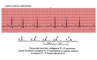 Синусовый нерегулярный ритм сердца что это такое