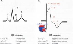 Описание экг с кардиостимулятором