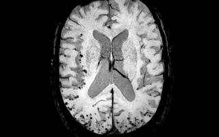Церебральная ангиопатия лечение