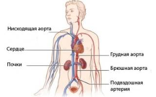 Тромбоз плечевой артерии