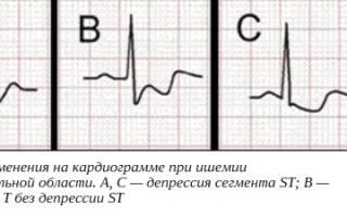 Субэндокардиальная ишемия на экг