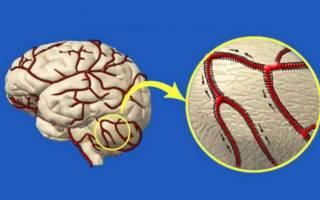 Современные сосудорасширяющие препараты при гипертонии