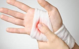 Капиллярное кровотечение цвет крови