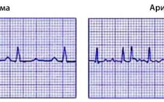 Симптомы аритмии сердца у мужчин лечение